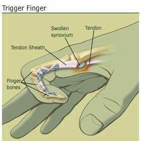 triger finger